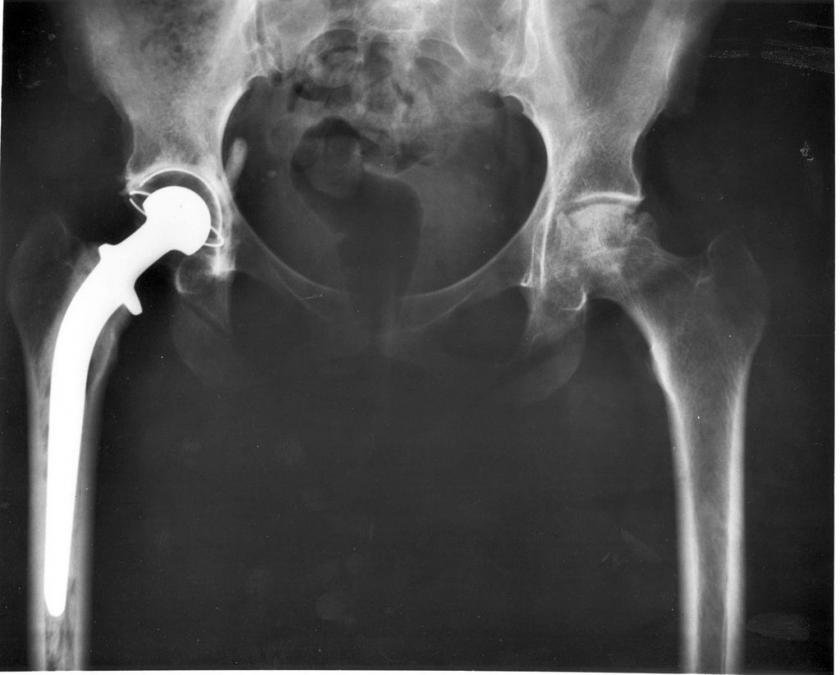 Hip replacements