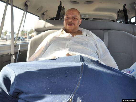 Wesley Warren Jr. Had 132 lb Scrotum Removed; Now He's Left With A One ...