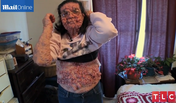 grandma-left-bubble-benign-tumors-face-and-body.png?itok=A-LTb3he