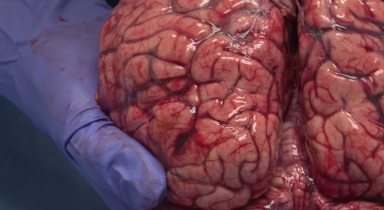 Handle With Care The Human Brain Is Delicate And You Should Take