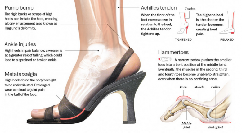 Wearing Flat Shoes And High Heels Side By Side