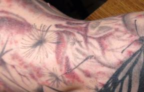 Tattoo infection