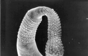 Spiny Parasitic Worm Inspires Scientists To Create Improved Adhesive Patch