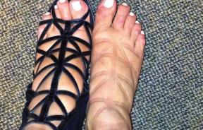 Kim Kardashian swollen feet pregnancy high heels