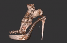 High heel scan