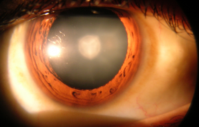 800px-Cataract_in_human_eye