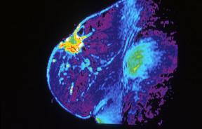 MRI showing breast cancer