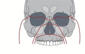 shutterstock image of face fractures
