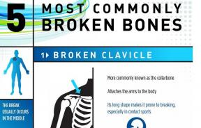5 most commonly broken bones