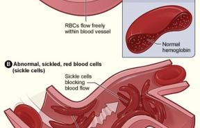 anemia-cell
